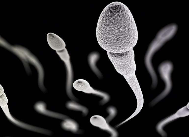 Электронная микроскопия сперматозоидов (ЭМИС)
